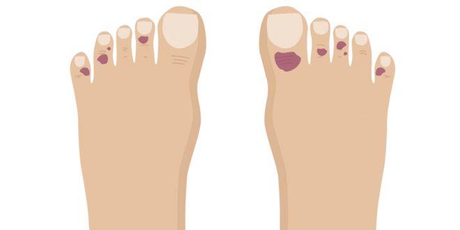Новый симптом: коронавирус может повреждать пальцы ног